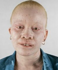 Major problems facing Albinos in Africa